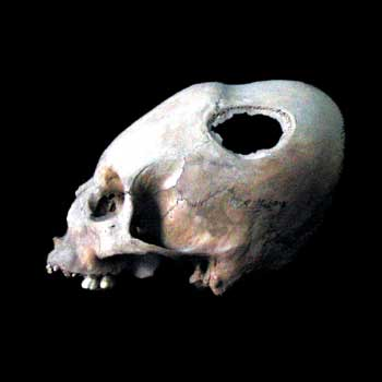 Skull with healed trepanation